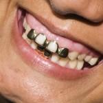 Zahngoldpreis –  Verkauf von Zahngold